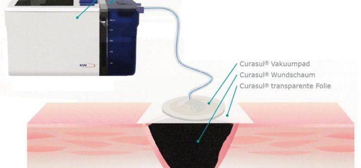 Entwicklung der Curasul Therapieeinheit für die Unterdruck-Wundversorgung