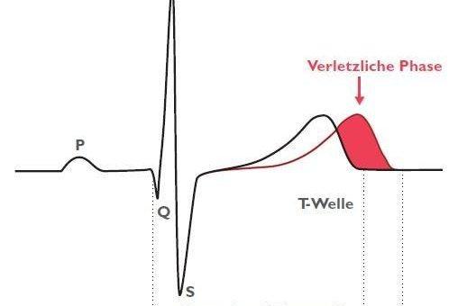 Warnung vor vorzeitigem Einsatz von Chloroquin-Azithromycin-Kombinationstherapie gegen COVID-19-Infektionen: Risiko durch bösartige Herzrhythmusstörungen